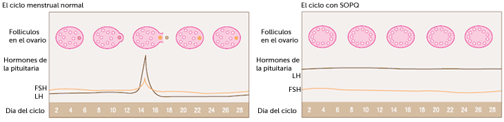 pcos-cycle-spanish