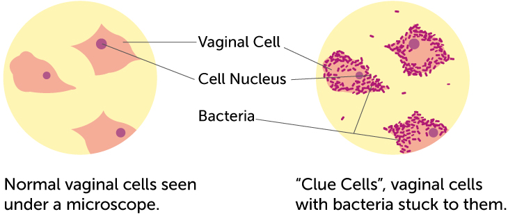 clue cells vs. normal vaginal cells