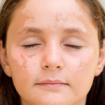 girl with facial discoloration