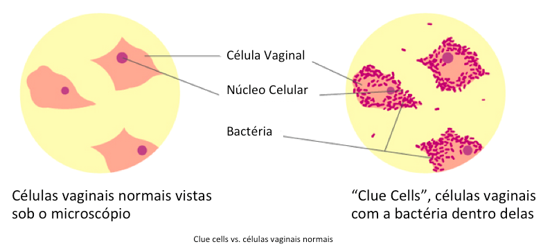 clue cells vs celulas vaginais normais